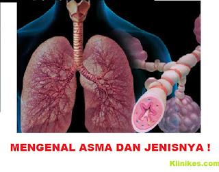 Mengenal Asma dan Jenisnya