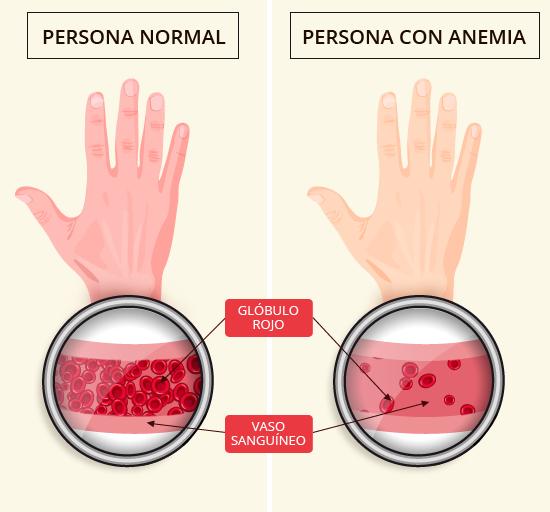 hematidrosis fisiopatología de la diabetes