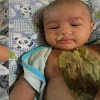 Bayi Batuk Pilek Tak Perlu Obat Kimia, Cukup Selembar Daun Sirih Tempel di Badannya, Gak Lama Dahak Keluar dari Hidungnya!