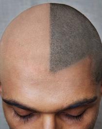 new hair restoration technique scalp pigmentation aka tattoo me an edge up niketalk