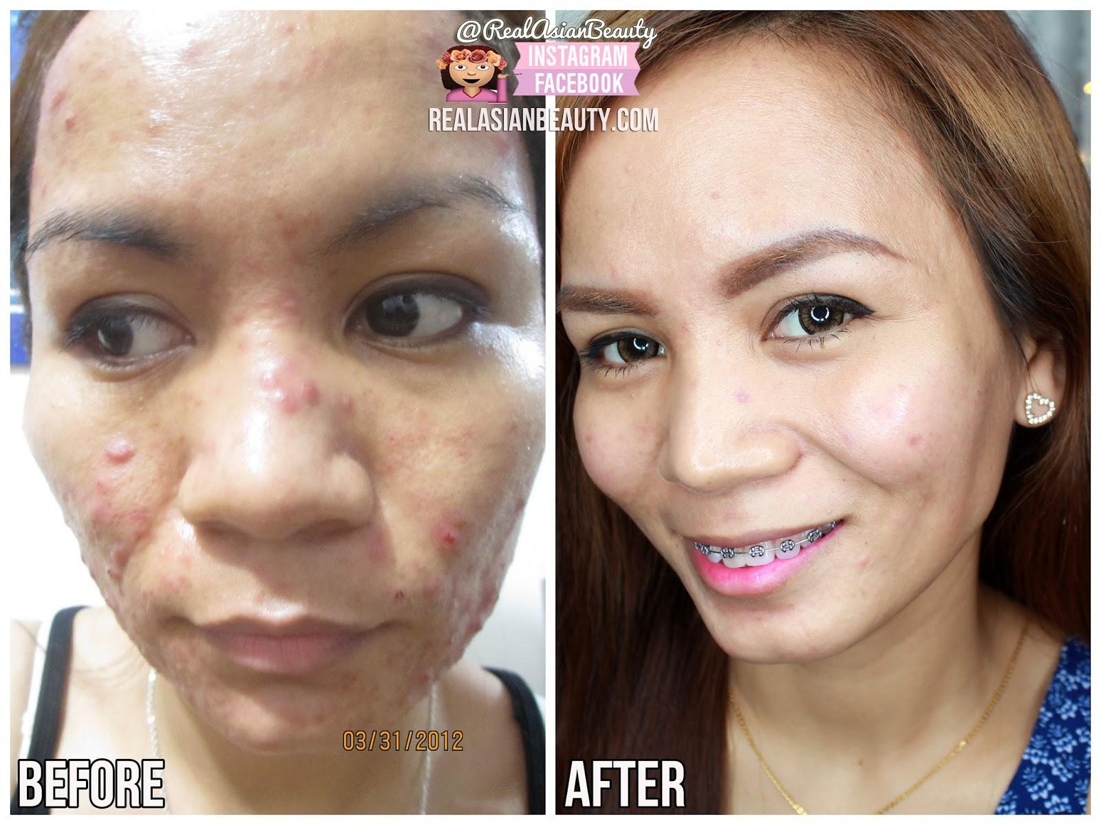 Real Asian Beauty: ESKINOL and DALACIN-C (PROS and CONS of