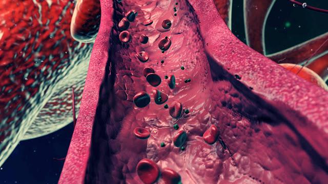 Penyakit Peredaran Darah
