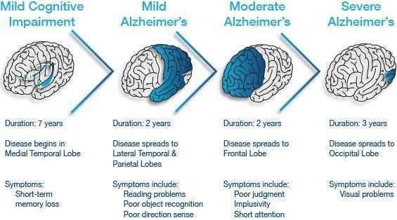 Vivix bantu pesakit Alzheimer's