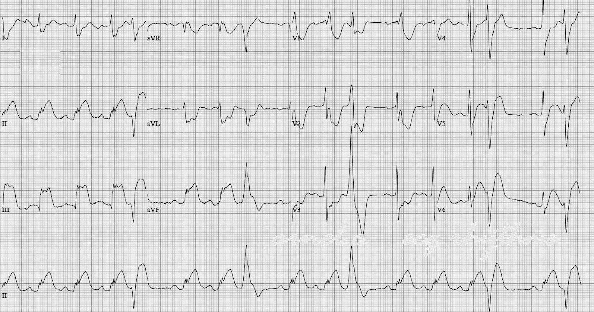 ECG Rhythms: Inferior Wall MI