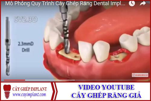 video youtube cấy ghép răng giả implant