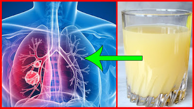 Cleanse Your Lungs Naturally In Just 3 Days