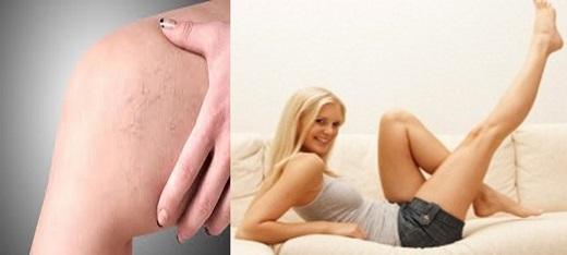 Tratamientos naturales para las varies