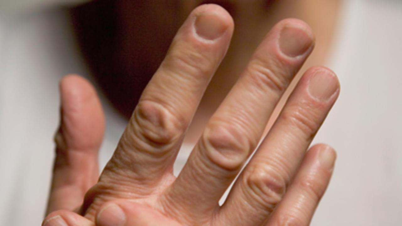 Obat Penyakit Tradisional Jari Tangan Kaku