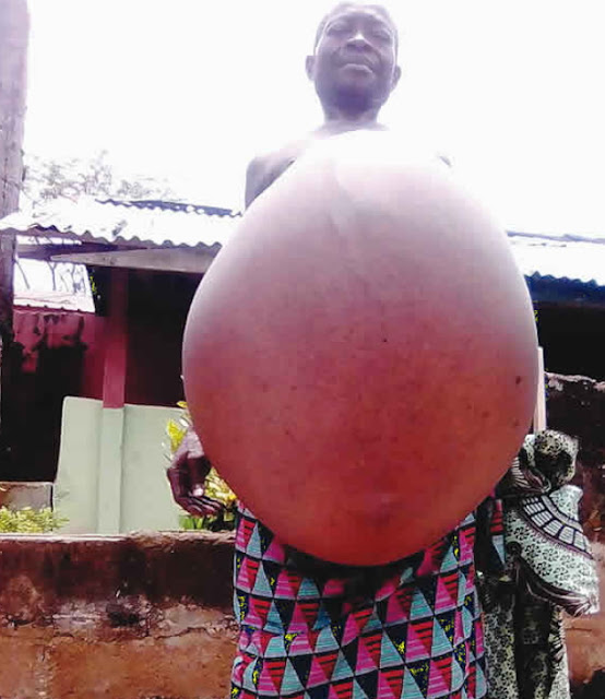 nigerian man with accumulated belly fat