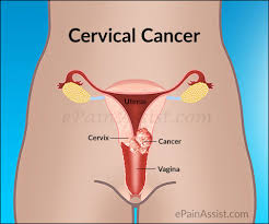 Young girls dying because of cervical cancer