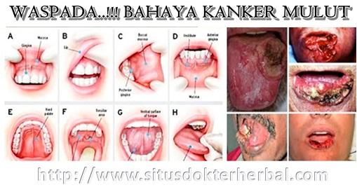 https://4.bp.blogspot.com/--tyRjF5E9r8/WFzPdLoljJI/AAAAAAAAAS8/xcqNEi7BDrMpS-CS7znGiJLw5S6Ya6elgCLcB/s1600/Obat-Herbal-Kanker-Mulut-Tradisional-Ampuh.jpg