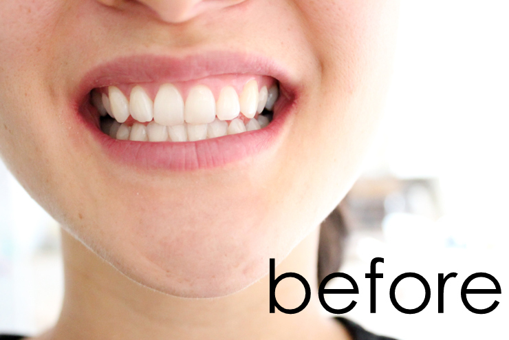 Pin Test Hydrogen Peroxide Teeth Whitening