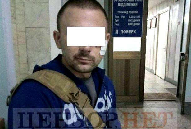 Український боєць ліквідував ворога, незважаючи на поранення в голову