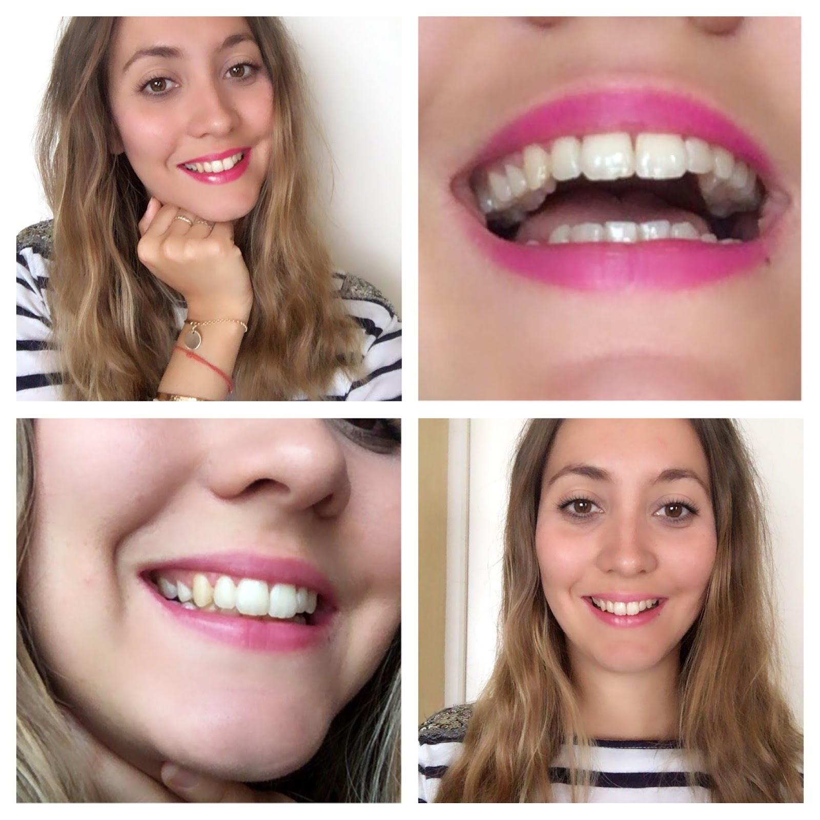 Mon Traitement Orthodontique Je Porte Des Aligners Invisalign