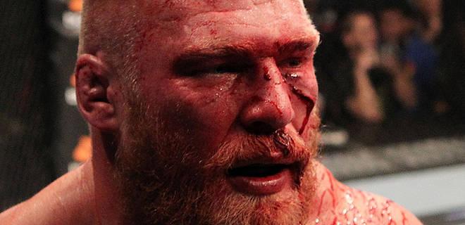 bloodiest fight ever? - UFC - UFC® Fight Club – Forum