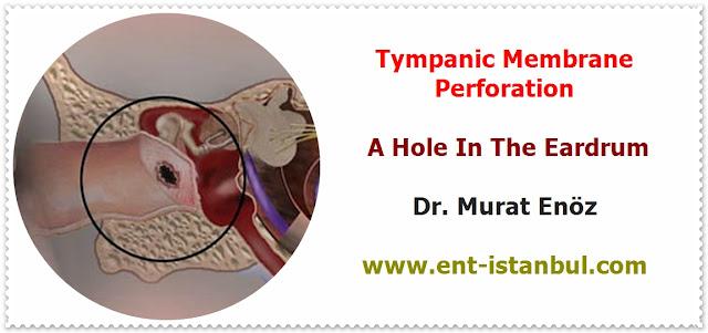Tympanoplasty Operation - Tympanoplasty Animation - Repair of Tympanic Membran Perforation - Transcanal (Transmeatal, Endomeatal) Tympanoplasty - A Hole In The Eardrum - Myringoplasty Technique - Tympanoplasty Indications - Tympanoplasty Contraindications - Postoperative Patient Care For Tympanoplasty Operation - Post-operative Instructions for Tympanoplasty