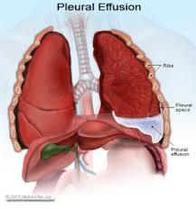 Efek Dari Penyakit Paru Paru Basah cairan%2Bdi%2Bparu%2Bparu