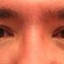 Διεγνώσθη με καρκίνο στα ματιά. Το πιο σοκαριστικό είναι η αιτία που το προκάλεσε και πρόκειται για κάτι που κάνεις σχεδόν κάθε βράδυ