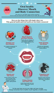Dangers Diseases that often attack your mouth and teeth