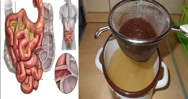 Empty And Cleanse Your Colon Of Toxins With These 3 Ingredients