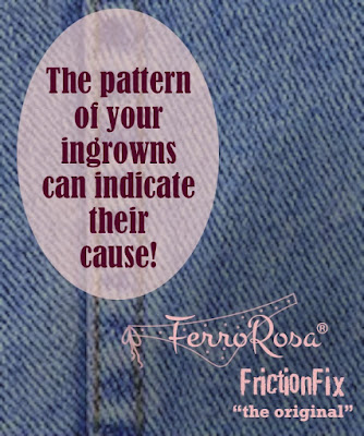 The pattern of your ingrowns can indicate their cause!