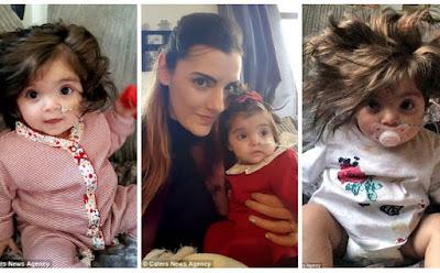 ΑΠΙΘΑΝΟ! Το 8 μηνών κοριτσάκι που έχει γίνει ΔΙΑΣΗΜΟ για το πλούσιο, μακρύ μαλλί του