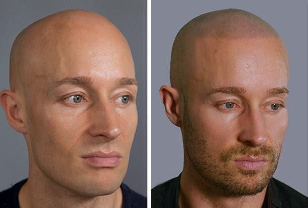 Tatuajes M 201 Dicos Cicatrices Mastectomias Alopecia Etc