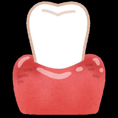 腫れた歯茎のイラスト(歯石なし)