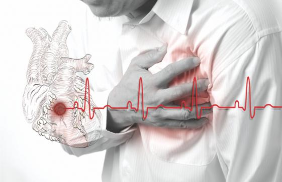 Heart Assault Triggers That May Surprise You