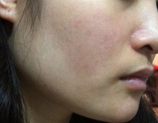 Triệu chứng viêm da dị ứng mặt