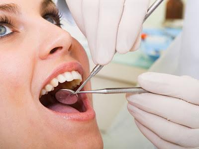 les causes de la Carie dentaire-quoi faire pour l'éviter ?