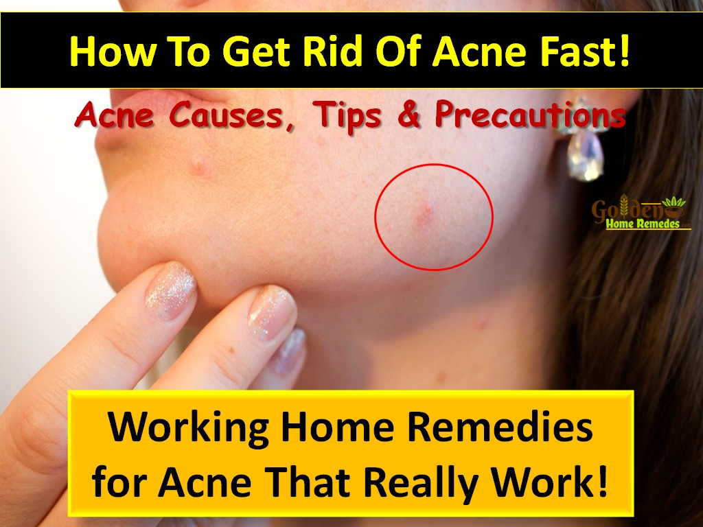 How Get Rid Of Pimples Home Remedies