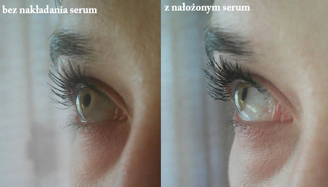 lbiotica serum do rzęs