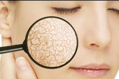 Things to Look For When Choosing Dry Skin Vitamins