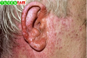 Fig. 5.27 Ear eczema