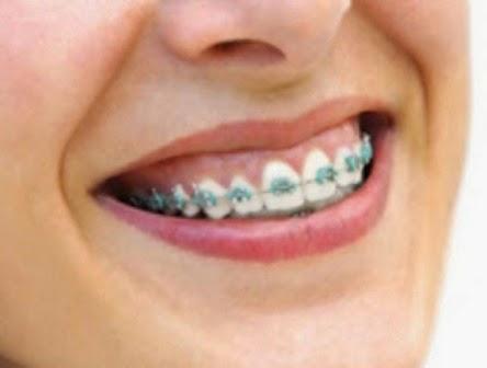 tips sebelum memasang behel atau kawat gigi