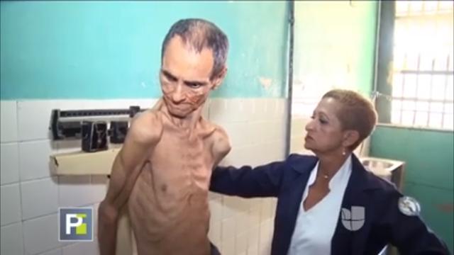 Las terribles condiciones en las que viven unos enfermos mentales en el hospital el pampero de Barquisimeto