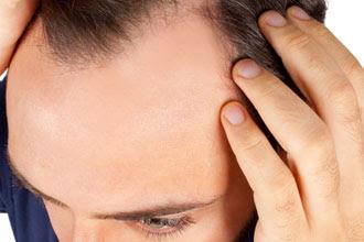ArganLife Anti Hair Loss Shampoo