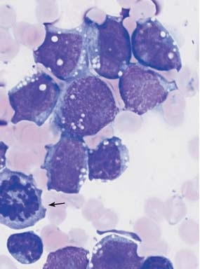 Bone marrow: large, vacuolated blasts, typical of B-cell ALL