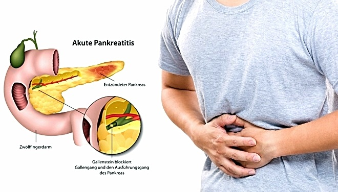 Penyebab Dan Gejala Pankreatitis Akut Wajib Anda Ketahui