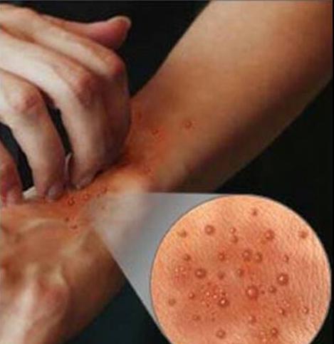وصفات فعاله لعلاج الحكة و الإكزيما .
