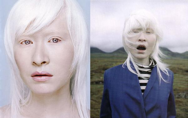 Sausages in the pan: Albino People