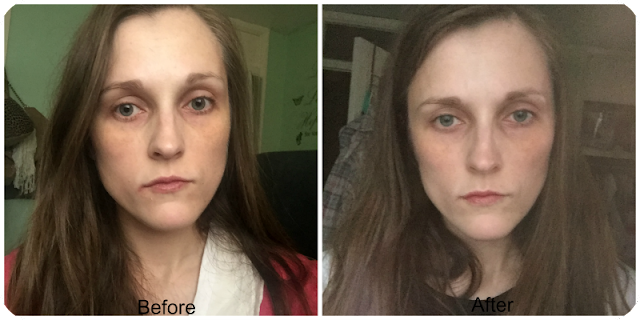 before and after herbalife line minimising serum