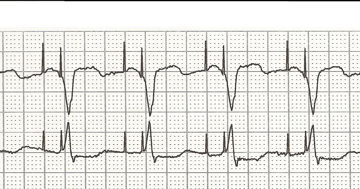 Float Nurse: EKG Rhythm Strip Quiz 14