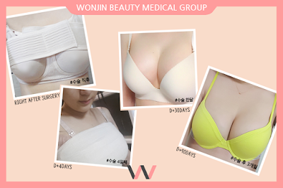 Get Your Summer Breast Surgery Wonjin