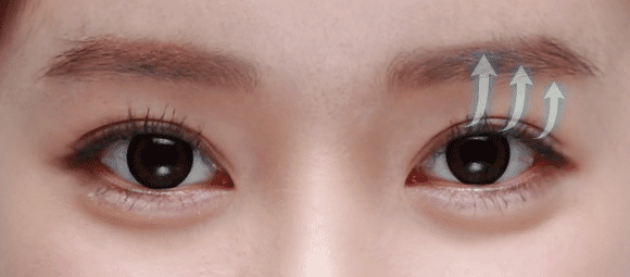 No Sausage-Looking Eyes With Korean Celebrities Eye Plastic Surgery Wonjin