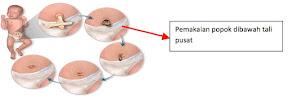 Tips Merawat Tali Pusat Bayi