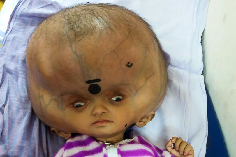 PAY-EXCLUSIVE-Doctors-successfully-help-baby-boy-diagnosed-with-world-s-largest-head (2)