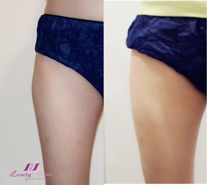 eha clinic fat reduction thighs liposonix review