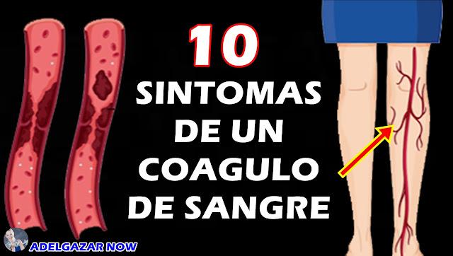 10 Síntomas De Alerta Temprana De Un Coágulo De Sangre Que Nunca Debes Ignorar
